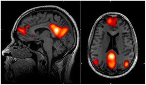 Default mode network - sistema cerebrale detto DMN