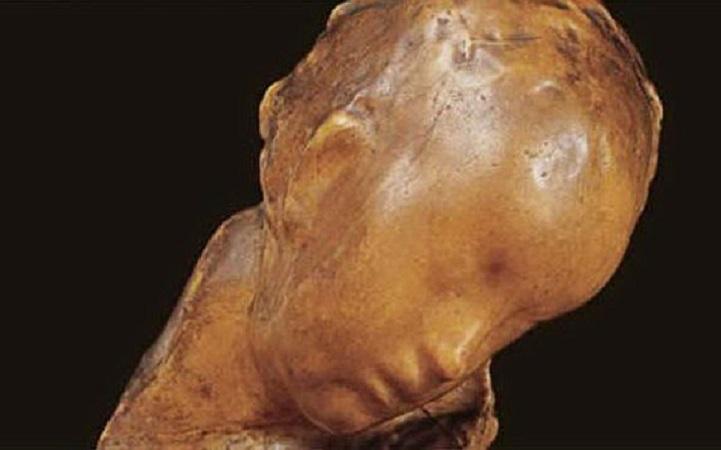 """Ritrovato """"Il Bambino Malato"""" di Medardo Rosso: la scultura era stata trafugata dalla Galleria D'Arte Moderna di Roma"""