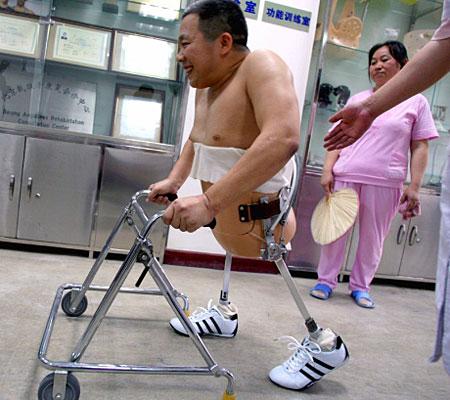 Dalla Cina un modello per tutti i mutilati: Peng Shulin, l'incredibile uomo a metà