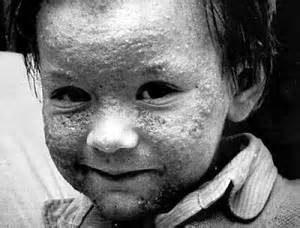 Seveso - effetto diossina in un bambino
