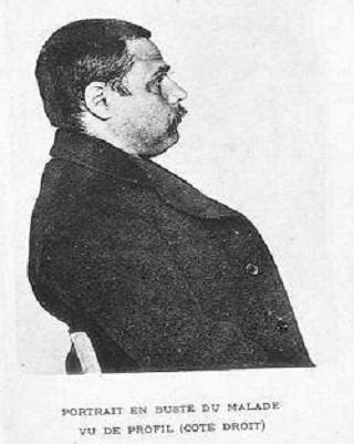 Victor Ardisson: il necrofilo francese divenuto famoso con il soprannome di Le Vampire du Muy