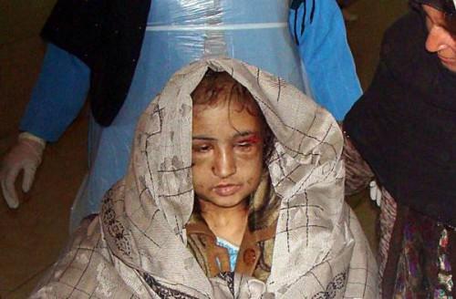 Afghanistan 2013: le donne protagoniste del 95% dei suicidi